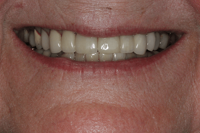 454-implant-after-photo