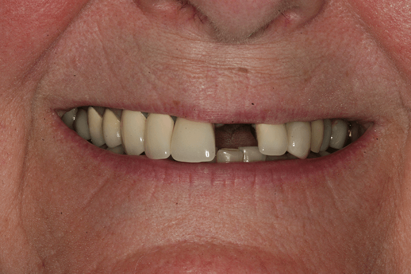 454-implant-before-photo