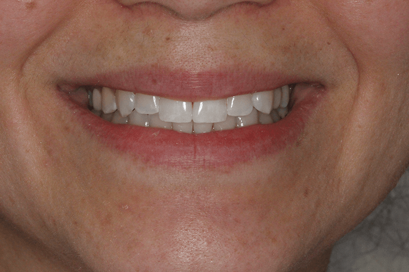 455-invisalign-after-photo