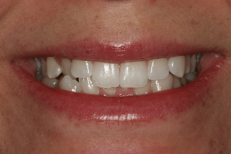 455-invisalign-before-photo