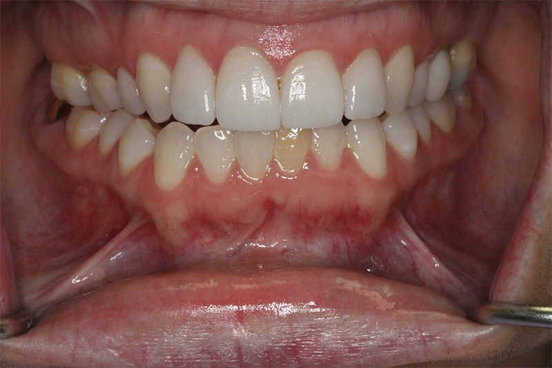 711_invisalign_after_photo